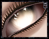 !C:. Diseased.Eyes