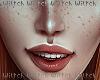 H! Freckles