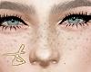 D| Freckles xMH