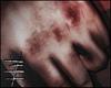 [B] !Ruined Hands!