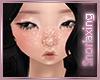 White Freckles | V2
