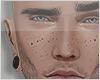FDZ x Freckles Cute