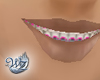 Braces in Pink (Moana)