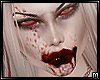ᴍ   Cannibal Twins II