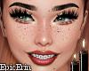 Braces Freckle Headv2