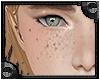 [Elmer] Freckles