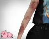 Arm scars