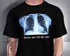 . x-ray t-shirt