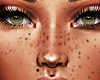 Freckles add on