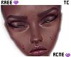 ® Tc. Acne Dark