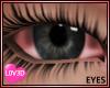 Sick Eyes (F)