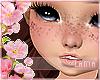 . Kids Freckles
