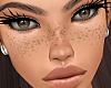 Med Freckles