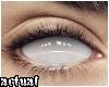 ✨ Blind
